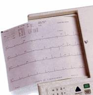 ECG Paper 8.5 x11 Z-Fold 150 Sheets/Pack 8 Packs/Case